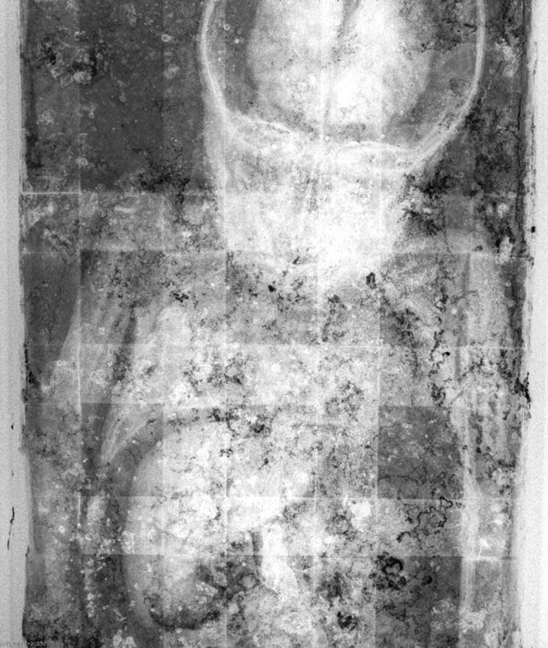 عکس ایکس ری از بدن رزالیا لومباردو