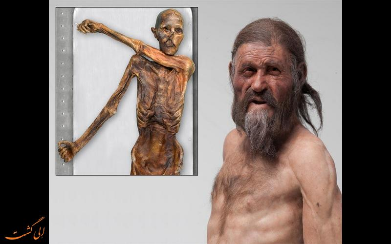 چهره بازسازی شده مومیایی اوتزی