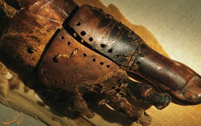 شست پای مصنوعی باستانی