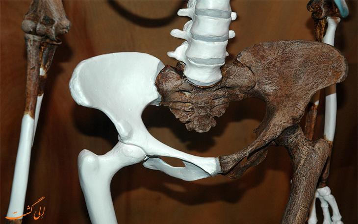 استخوان های سلام