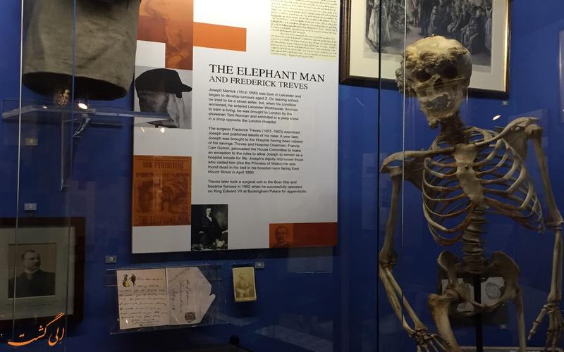 یادبود مرد فیلی در موزه بیمارستان