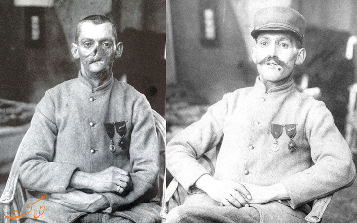 آسیب های سربازان پس از جنگ جهانی اول